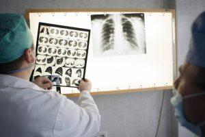 Россиян предупредили о распространении туберкулеза на Украине