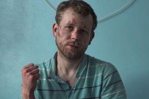 Украинский депутат избил и посадил на цепь жителя Донбасса