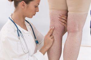 Помощь флеболога, важного врача для людей с проблемными венами